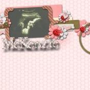 ultrasound of McKenzie 1