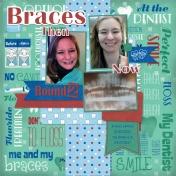 Braces Round 2